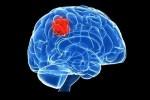 آشنایی با علائم تومور مغزی در کودکان